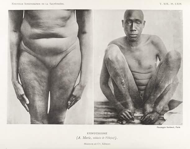 000-Castration-des-esclaves-par-les-arabo-musulmans.jpg